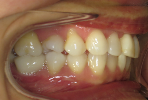 2 Right buccal in occlusion