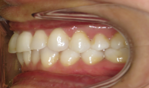 3 Left buccal in occlusion